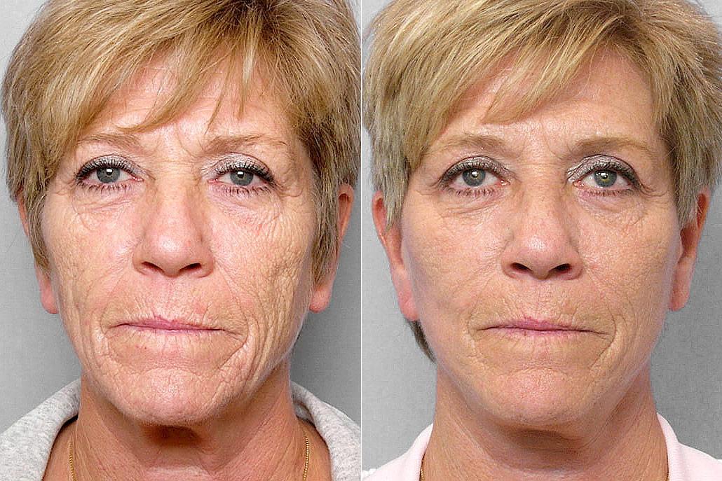 Före och efter-bild på kvinna som genomgått ett ansiktslyft, total FX-laser samt kemisk peeling på hals.