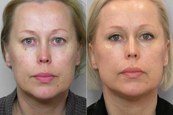 Före och efter-bild på kvinna som genomgått övre ögonlocksplastik, kindlyft, samt IPL-behandling