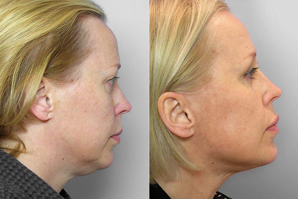Före och efter-bild på kvinna i profil som genomgått övre ögonlocksplastik, kindlyft, samt IPL-behandling