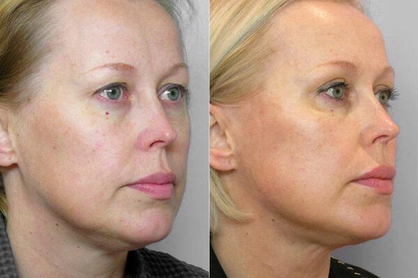 Före och efter-bild på kvinna i halvprofil som genomgått övre ögonlocksplastik, kindlyft, samt IPL-behandling