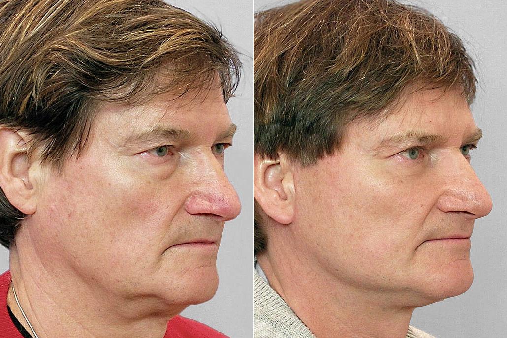 Före- och efterbild i halvprofil på man som genomfört ett ansiktslyft + övre- och undre ögonlocksplastik.