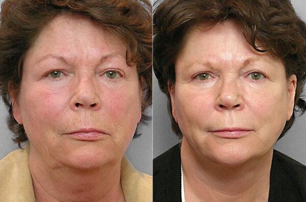 Före och efter-bild på kvinna som genomgått ansiktslyft, fettsugning av haka, ögonlocksplastik, samt hudvårdsbehandling.