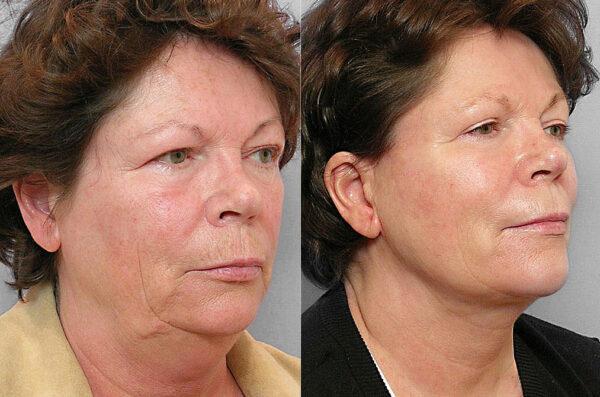 Före och efter-bild på kvinna i halvprofil. som gjort ansiktslyft, fettsugning haka, ögonlocksplastik + hudbehandling.