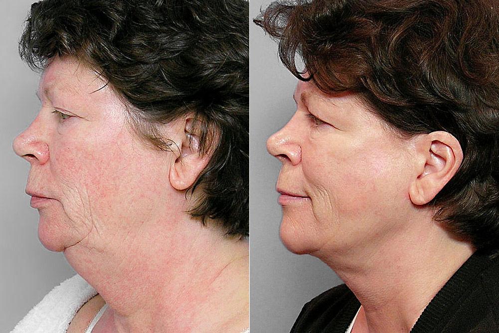 Före och efter-bild på kvinna i profil. som gjort ansiktslyft, fettsugning haka, ögonlocksplastik + hudbehandling.