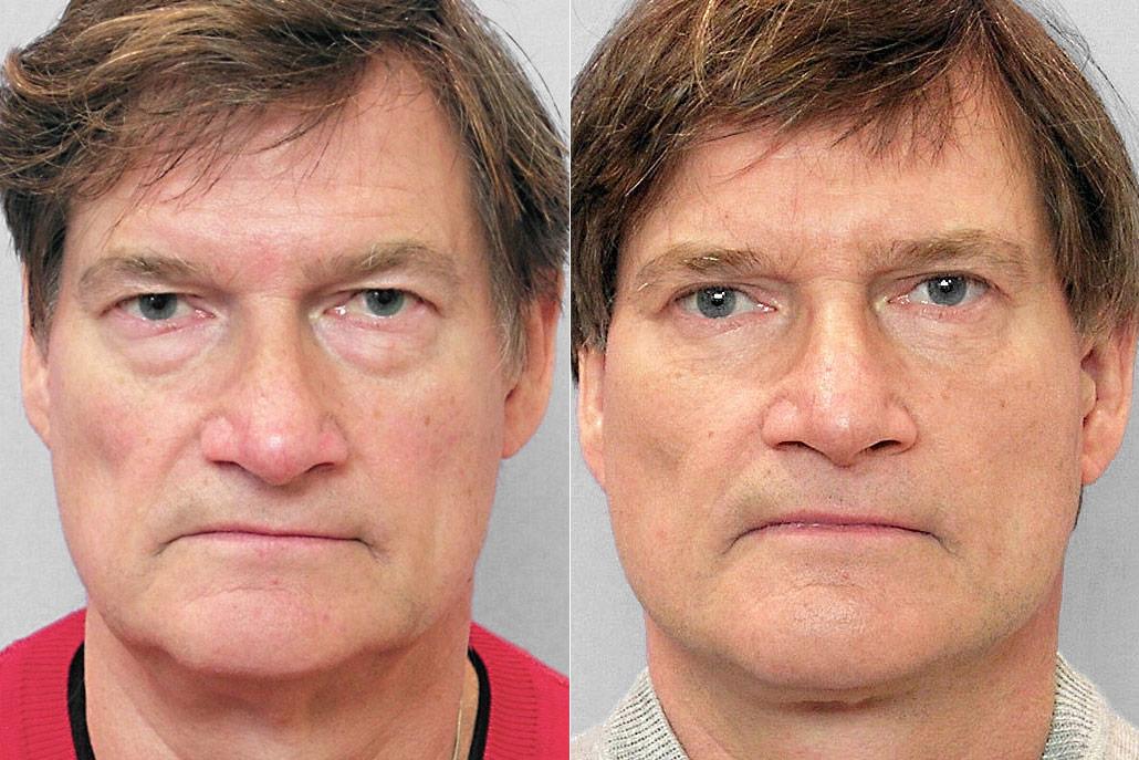 Före- och efterbild på man som genomfört ett ansiktslyft + övre- och undre ögonlocksplastik.