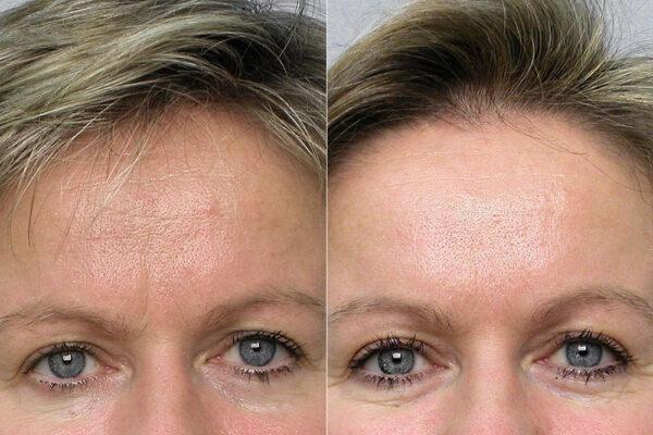 Detaljbild på kvinna före och efter behandling med botox i pannan