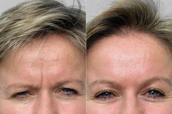 Detaljbild på kisande kvinna, före och efter behandling med botox i pannan