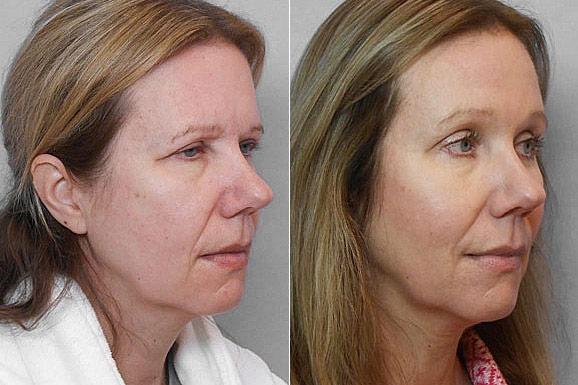 Bild på kvinna i högerställd halvprofil, före och efter genomfört endoskopiskt ögonbrynslyft/pannlyft.