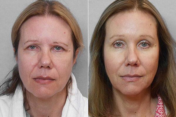 Före- och efterbild på person som genomfört ett endoskopiskt ögonbrynslyft/pannlyft.