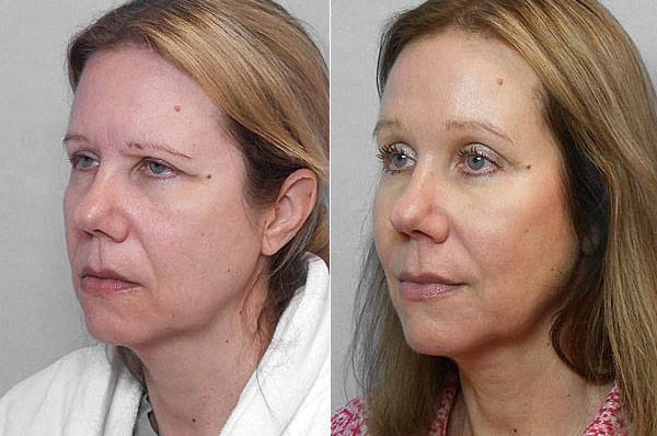 Bild på kvinna i vänster halvprofil, före och efter genomfört endoskopiskt ögonbrynslyft/pannlyft.