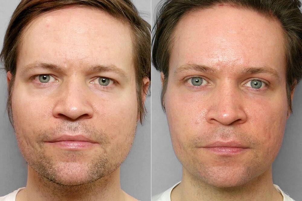 Före- och efterbild på man som genomgått pannlyft + fettinjektion under ögon + ögonlocksplastik + laserbehandling.