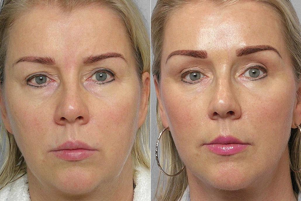 Bild på kvinna före och efter genomfört endoskopiskt pannlyft, övre ögonlocksplastik samt fettinjektion under ögon.