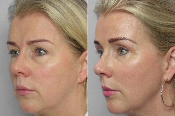 Bild på kvinna i profil, före och efter endoskopiskt pannlyft, övre ögonlocksplastik + fettinjektion under ögon.