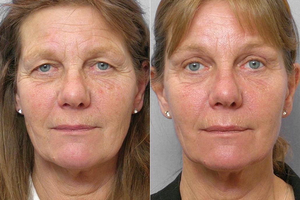 Bild på kvinna före och efter genomförd undre + övre ögonlocksplastik, samt endoskopiskt pannlyft.