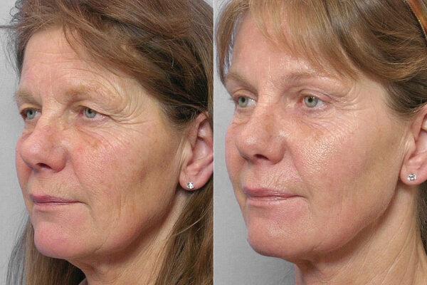 Bild på kvinna i väster halvprofil, före och efter genomförd undre + övre ögonlocksplastik, samt endoskopiskt pannlyft.