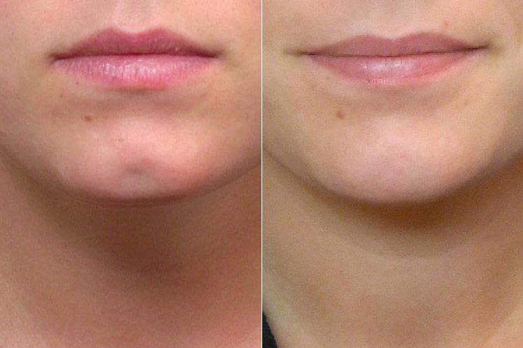 Inzoomad före- och efterbild på person som genomfört en fettinjektion mot grop i hakan.