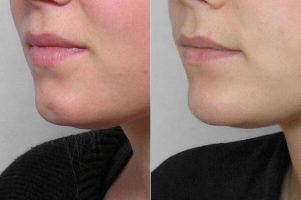 nzoomad före- och efterbild på person i vänsterställd halvprofil som genomfört en fettinjektion mot grop i hakan.