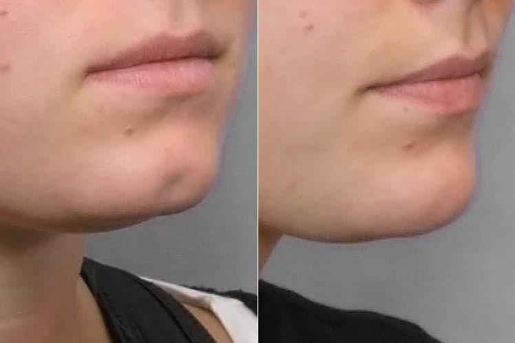 nzoomad före- och efterbild på person i högerställd halvprofil som genomfört en fettinjektion mot grop i hakan.