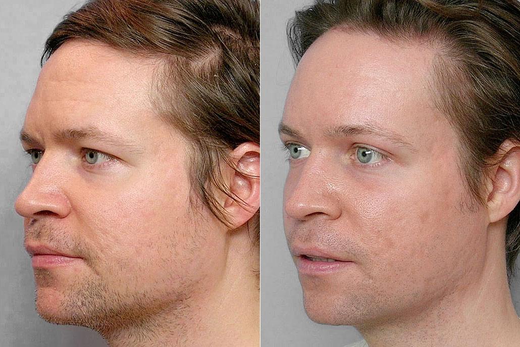 Före- + efterbild på man i profil som gjort pannlyft + fettinjektion under ögon + ögonlocksplastik + laserbehandling.