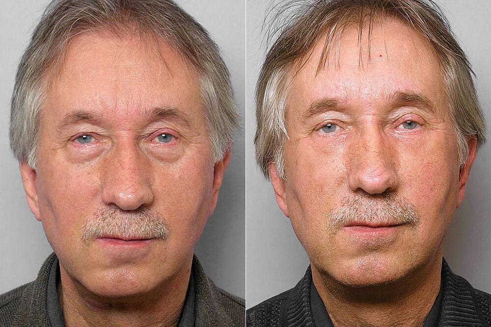 Före- och efterbild på man som fått behandling med fettinjektion under ögonen + laserbehandlingen TotalFX-laser.