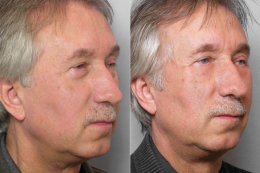 Före- och efterbild på man i höger halvprofil, som fått fettinjektion under ögonen + laserbehandlingen TotalFX-laser.