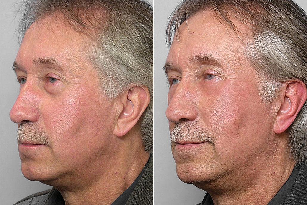 Före- och efterbild på man i vänster halvprofil, som fått fettinjektion under ögonen + laserbehandlingen TotalFX-laser.