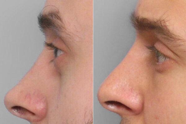 Inzoomad före- och efterbild på person i profil som genomfört en fettinjektion under ögonen.