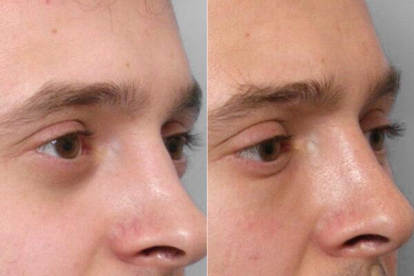 Inzoomad före- och efterbild på person i halvprofil som genomfört en fettinjektion under ögonen.