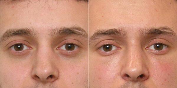 Inzoomad före- och efterbild på person som genomfört en fettinjektion under ögonen.