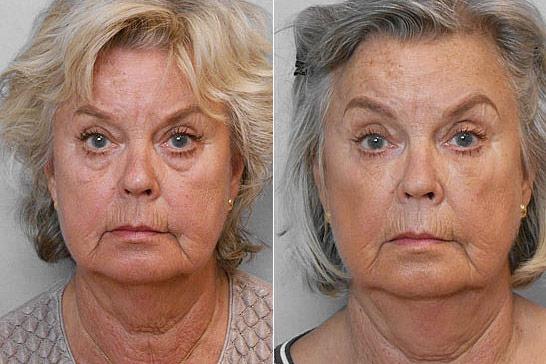 Före- och efterbild på kvinna som genomgått behandling med fettinjektion under ögonen.