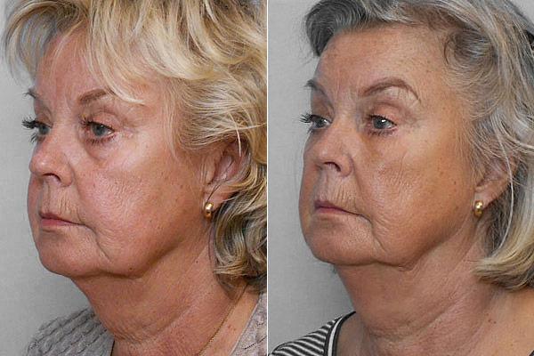 Före- och efterbild på kvinna i vänsterställd halvprofil, som genomgått behandling med fettinjektion under ögonen.