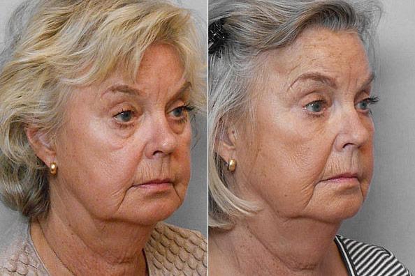 Före- och efterbild på kvinna i högerställd halvprofil, som genomgått behandling med fettinjektion under ögonen.