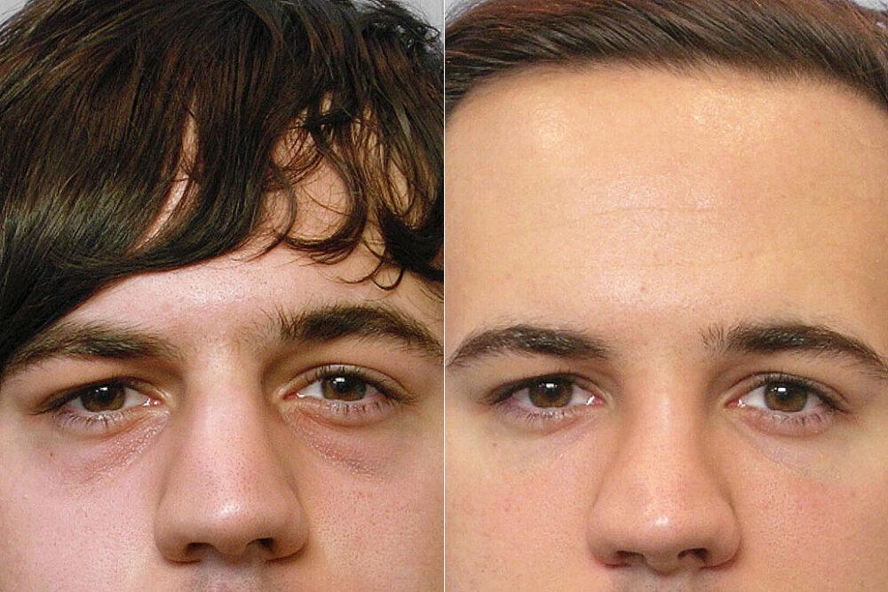 Detaljbild på person före och efter behandling med fettinjektion under ögonen.