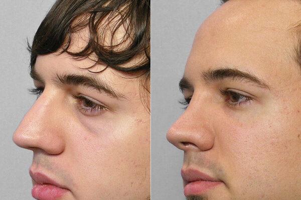 Detaljbild på person i halvprofil, före och efter behandling med fettinjektion under ögonen