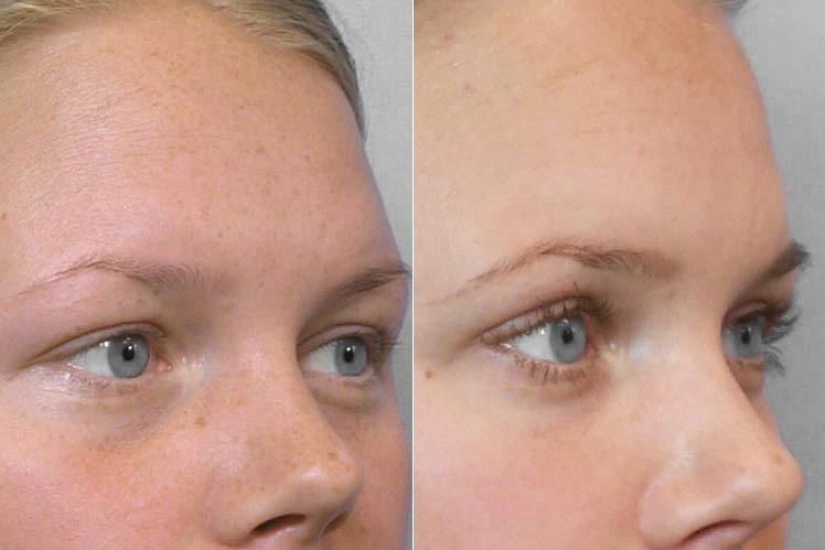 Detaljbild före- och efter, på person i högerställd halvprofil som genomfört en fettinjektion under ögonen.