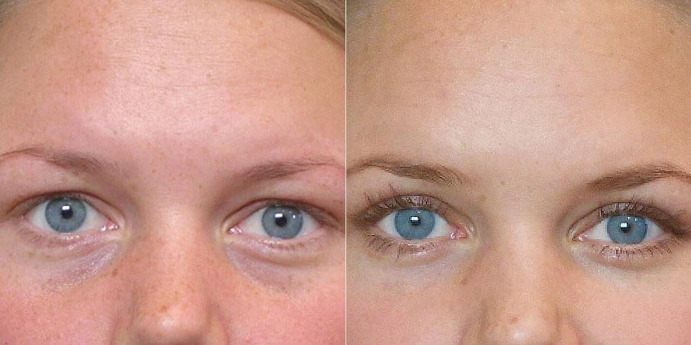 Detaljbild före och efter, på person som genomfört en fettinjektion under ögonen.