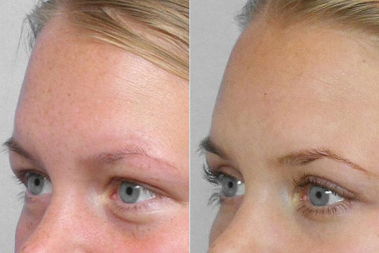 Detaljbild före och efter, på person i vänsterställd halvprofil som genomfört en fettinjektion under ögonen.