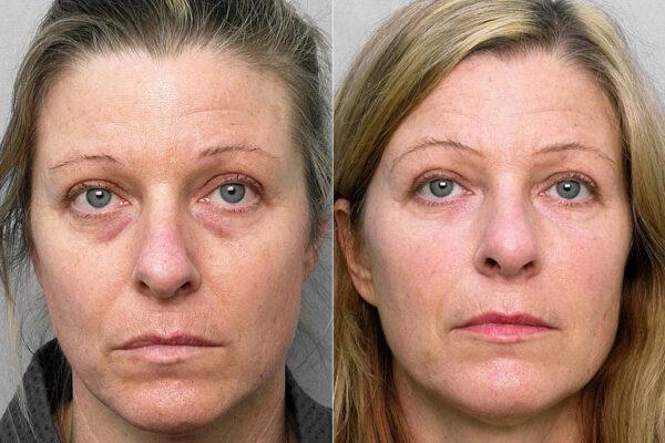 Före och efter-bild på kvinna som genomgått fettinjektion under ögonen samt medicinskt hudvårdsprogram