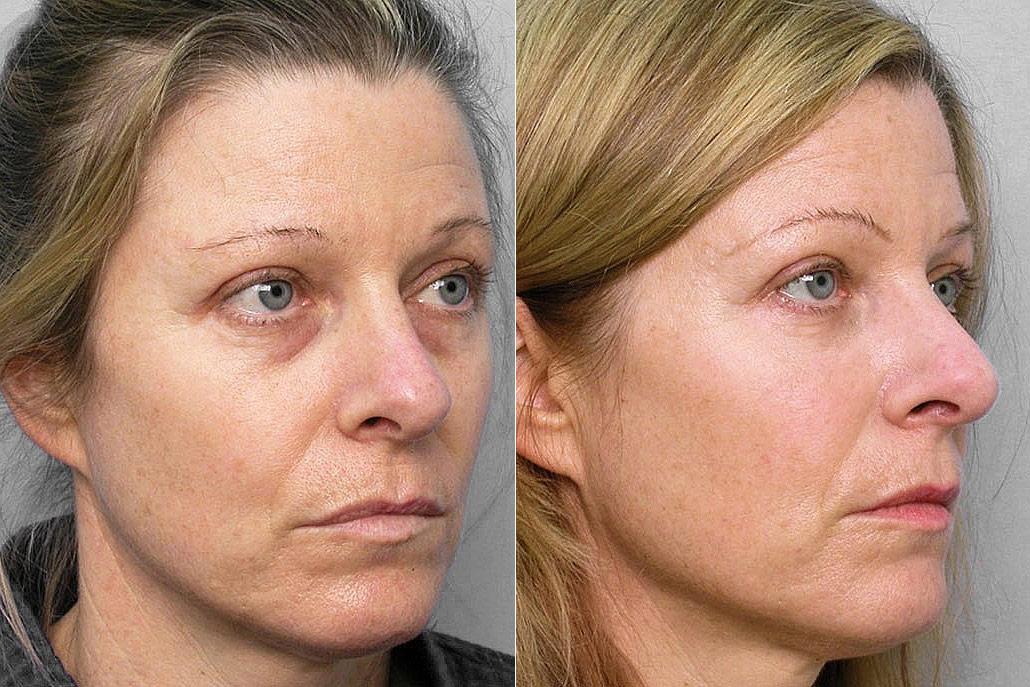 Före och efter-bild på kvinna i högerställd halvprofil, som fått fettinjektion under ögonen + medicinskt hudvårdsprogram