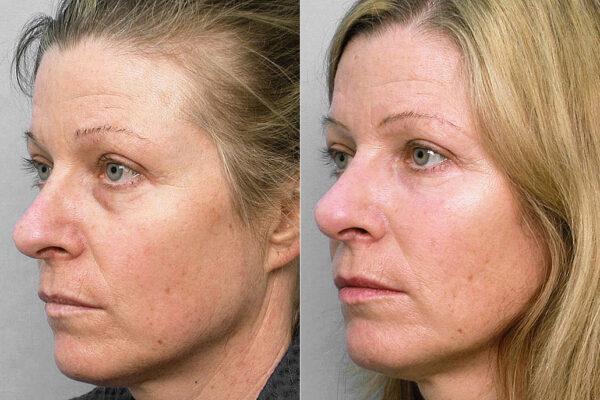 Före och efter-bild på kvinna i vänsterställd halvprofil, som fått fettinjektion under ögonen samt med. hudvårdsprogram.