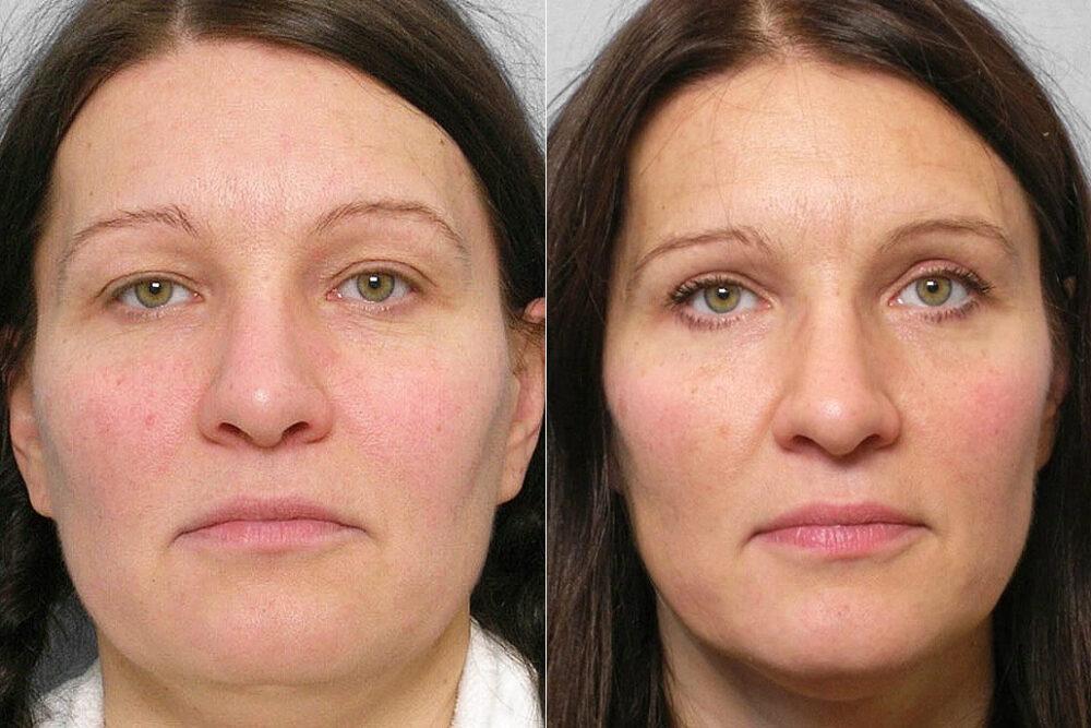 Före- och efterbild på kvinna som genomfört fettinjektion under ögonen + genomgått övre ögonlocksplastik.