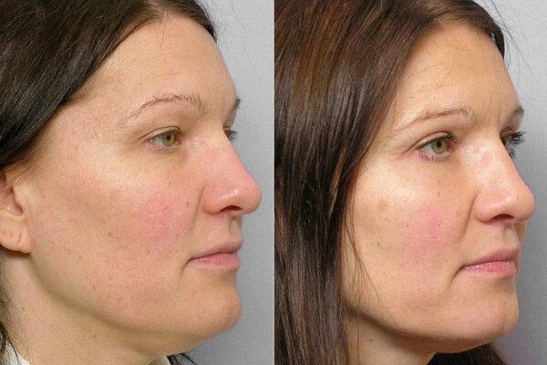 Före- och efterbild på kvinna i profil som genomfört fettinjektion under ögonen + genomgått övre ögonlocksplastik.
