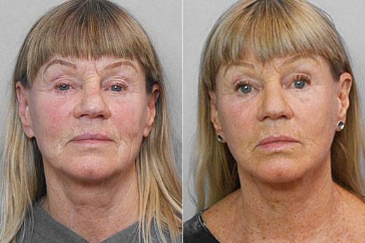 Före- och efterbild på kvinna som genomfört ett ansiktslyft.