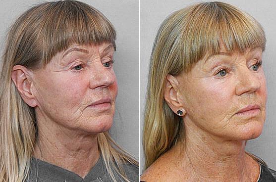 Före- och efterbild i halvprofil på kvinna som genomfört ett ansiktslyft.