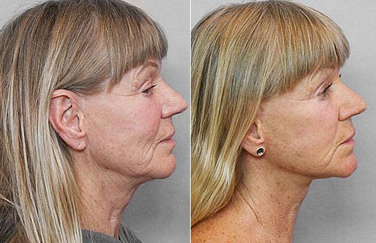 Före- och efterbild i profil på kvinna som genomfört ett ansiktslyft.