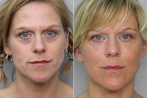 Bild på kvinna före och efter behandling med fettinjektion under ögonen.