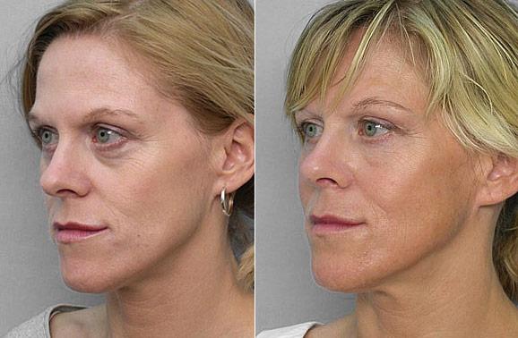 Bild på kvinna i halvprofil, före- och efter behandling med fettinjektion under ögonen.