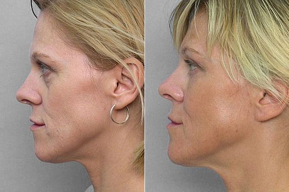 Bild på kvinna i profil, före- och efter behandling med fettinjektion under ögonen.