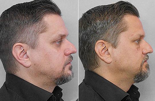 Före- och efterbild på man i profil som genomgått behandling med fettinjektion under ögonen.
