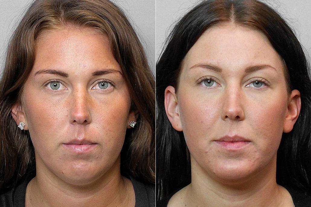 Före- och efterbild på kvinna som fått ett hakimplantat + genomgått en fettsugning av hakan.